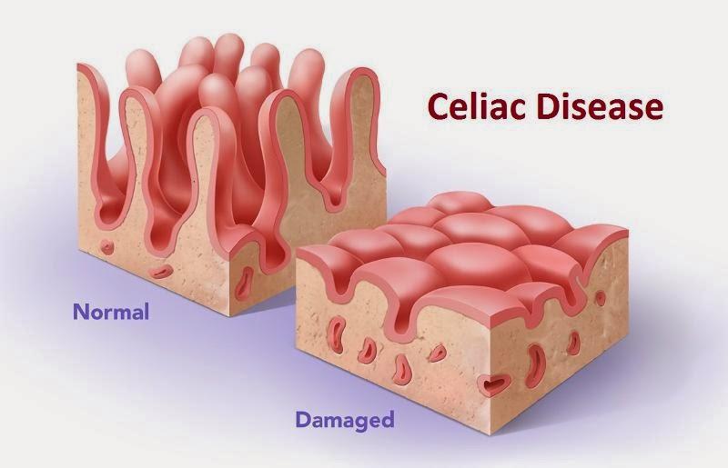 Celiac Disease: How to Go Gluten-Free